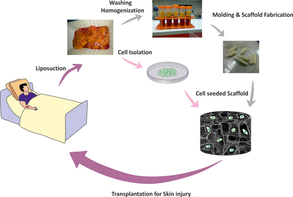 Preparation of Skin Tissue Engineering Scaffold Based on Adipose-Derived Tissue