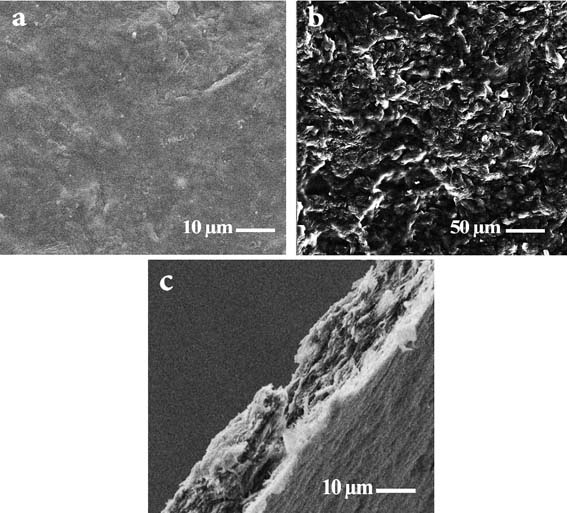 Improved Biomedical Properties of Chitosan/Alginate Composites by Chemical Immobilization of Gelatin layer